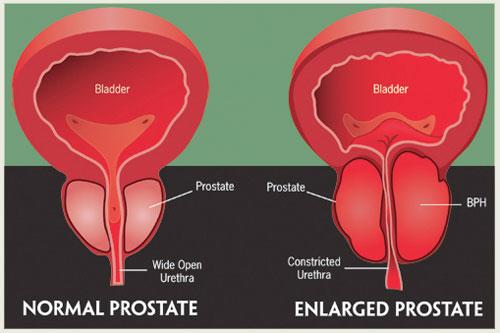 prostate_disease