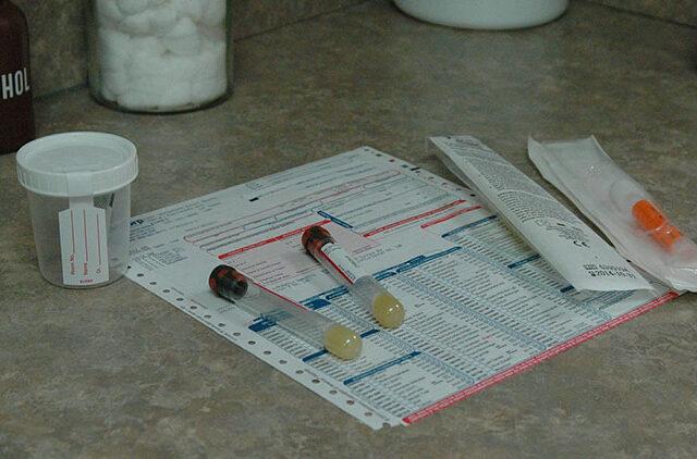πυελονεφρίτιδα, ουρολοίμωξη, προστάτης, νεφρική ανεπάρκεια, ούρα